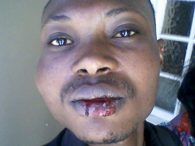 Junior from DRC after beating in South Africa.