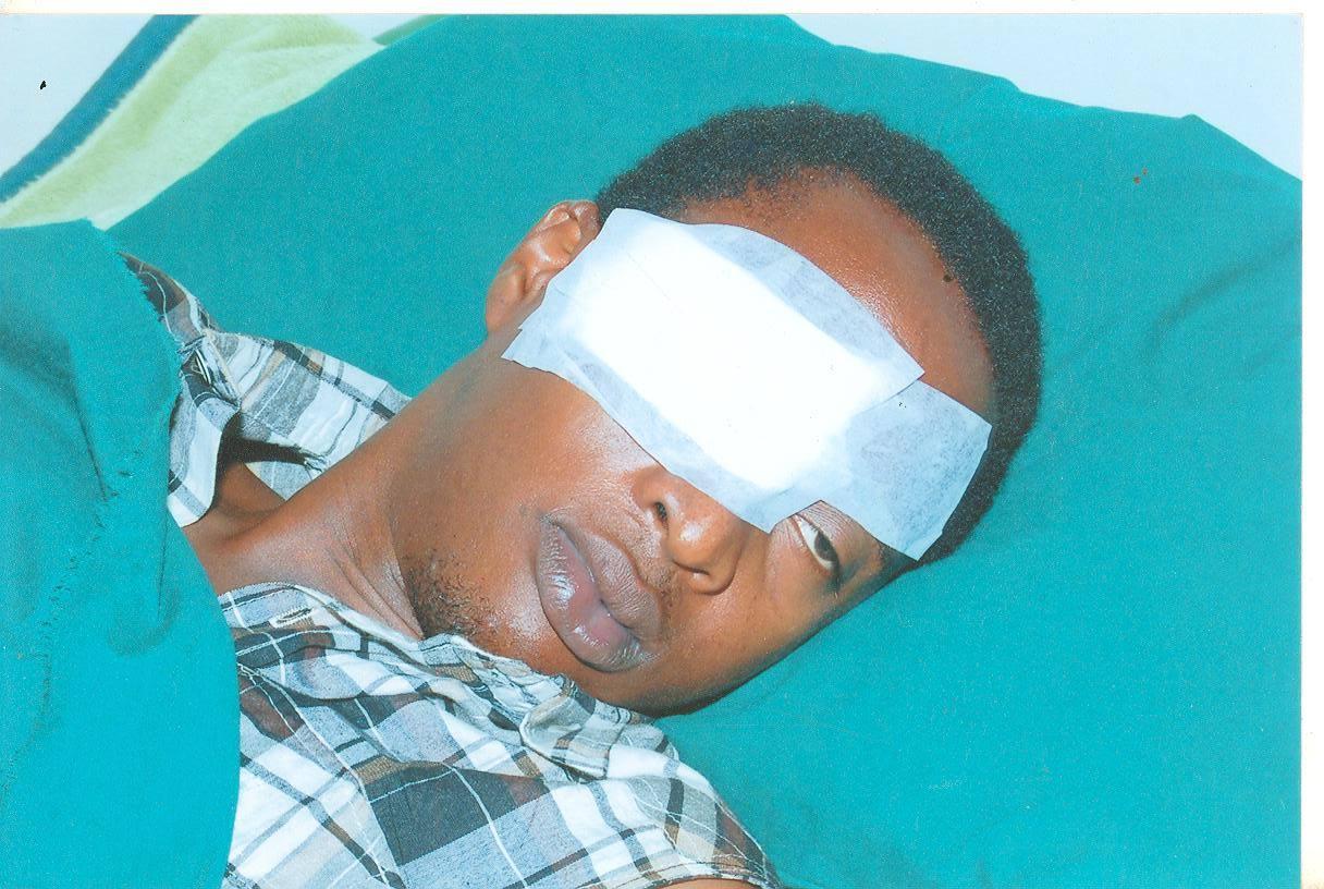 Hush Ainebyona with her right eye bandaged. (Photo courtesy of Hush Ainebyona)