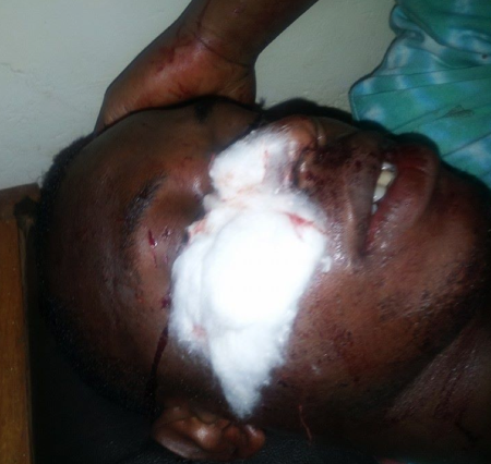 Kelly Mukwano, injured by a mob (Photo courtesy O-blog-dee-o-blog-da)
