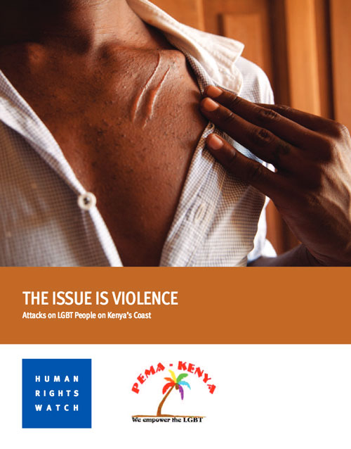 "This photo is from an HRW report on homophobic violence in Kenya. To read that report, click on this image. For Jake Naughton's photos, see the Time article online. The caption for one of Naughton's photos is ""Soon after arriving in Kenya, S. says he was attacked by seven men with machetes. Here, evidence of his attack that he submitted as part of his resettlement application. He has since been resettled in the U.S."""