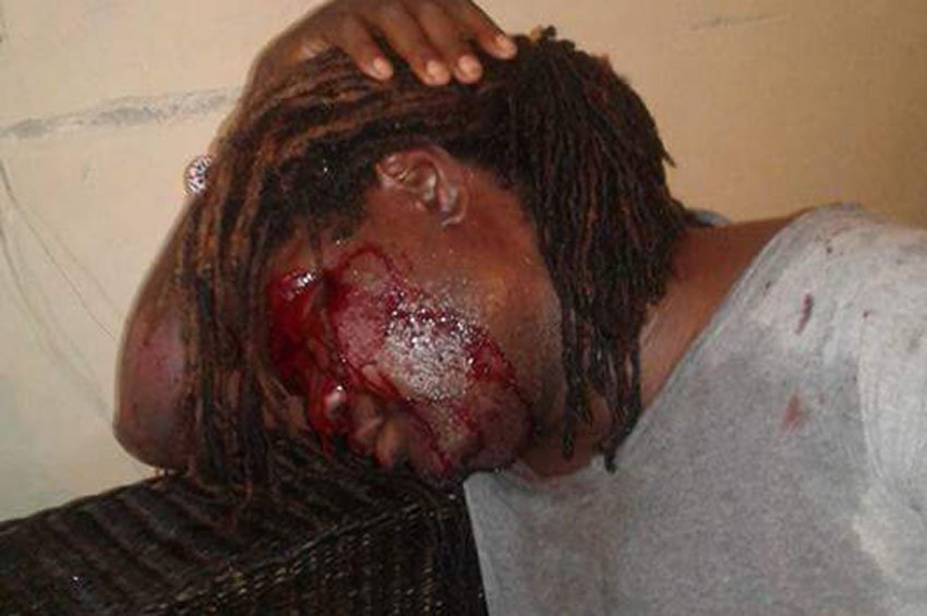 Kelvin Gomani after being attacked in Malawi. (This photo from Facebook was widely distributed by LGBTI rights activists who were outraged by the incident.)