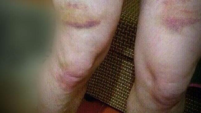 Bruises on Chechen torture victim (Photo courtesy of Novaya Gazeta via News.com)