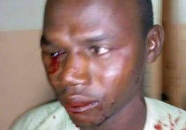 This gay man lost his eye in the raid. (Photo courtesy of the Garoua Youth Solidarity Association)