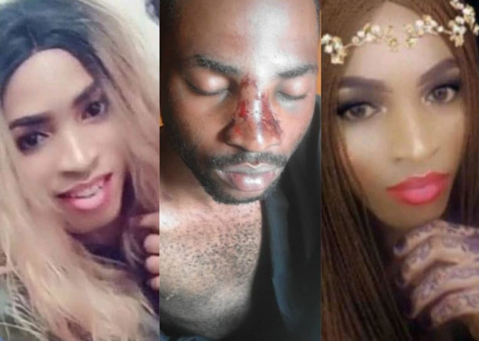 Photos show Zari's bruises (center) and her earlier appearance, with makeup (left and right)